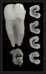 "High level of difficulty root canal treatment to perform in a C shape canal, a root canal anatomy variation. Image from: ""The Root Canal anatomy project"""