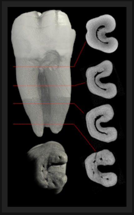 Root Canal Anatomy Endomontreal