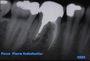 Dental Operative Microscope and Retreatment, Orthograde MTA plugs and root repairs, Root Canal Treatment Pre-Therapy