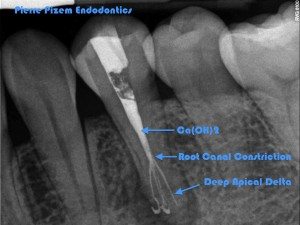 Anatomical Variation and root canal Treatment on 35  Ca(OH)2