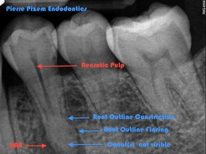 Anatomical variation 35 and root canal treatment Pre op