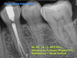 Anatomical Variation and Root Canal Treatment