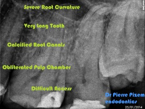 Root Canal with S Curvature Pre-therapy