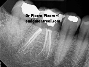 Root Canal Treatment on Calcified Molar Post Therapy 46969-14