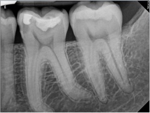 How to avoid a root canal treatment pre-therapy 14072015