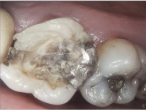 Root canal therapy on maxillary molar Per operative picture 2015-08-27 1