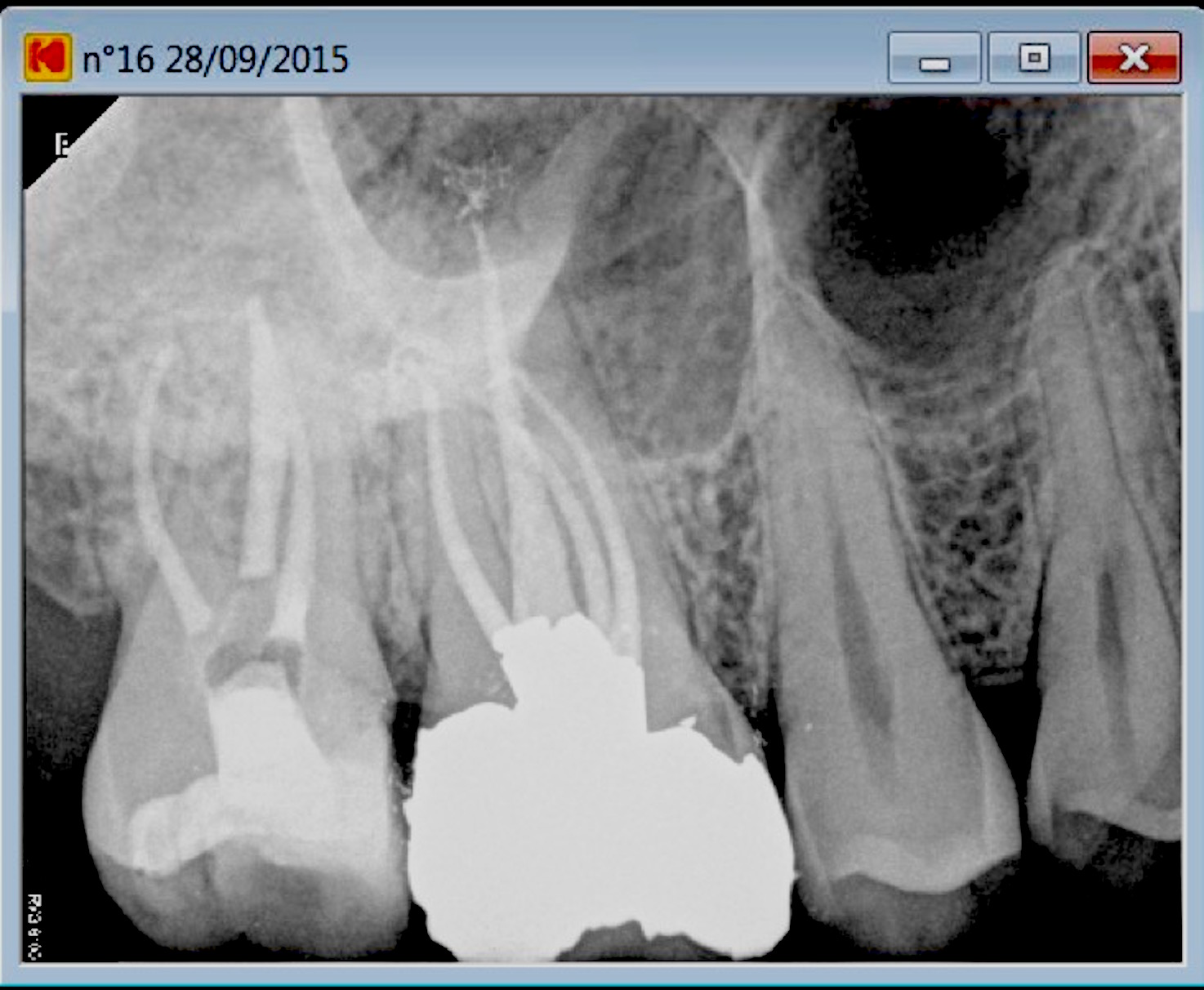 second mesiovestibular post root canal treatment B