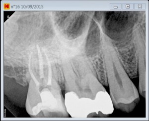 second mesiovestibular pre root canal treatment