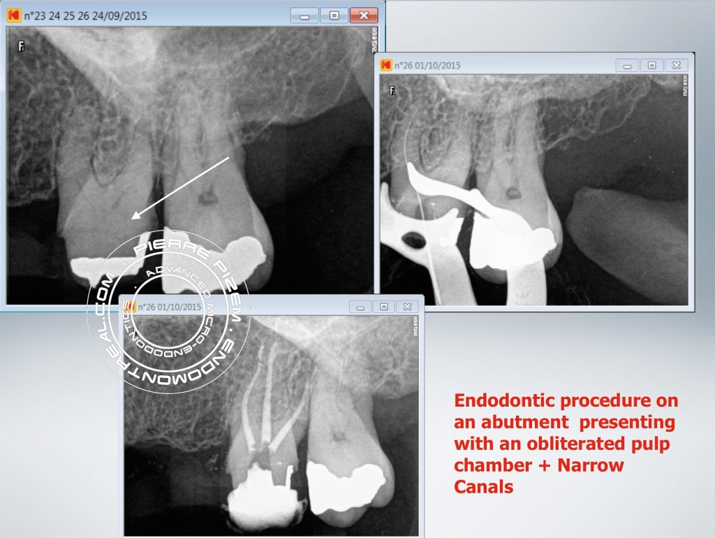 root canal procedure on a calcified molar abutment