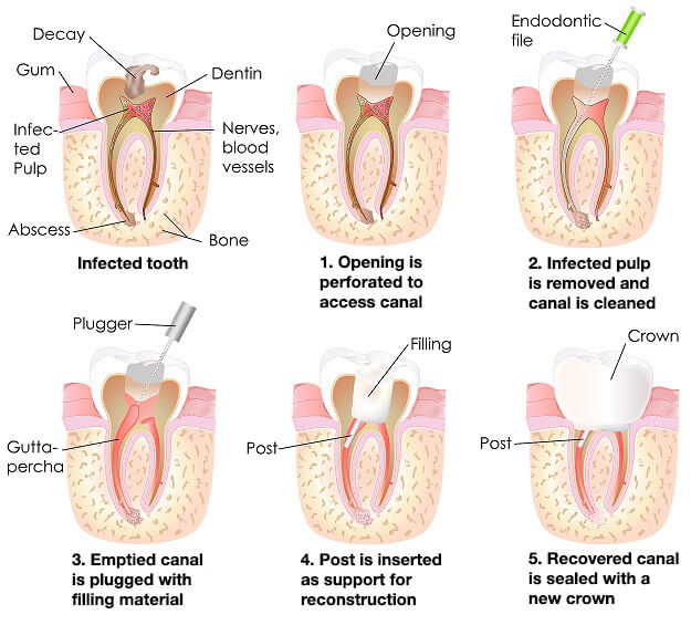 Root Canal Treatment Montreal