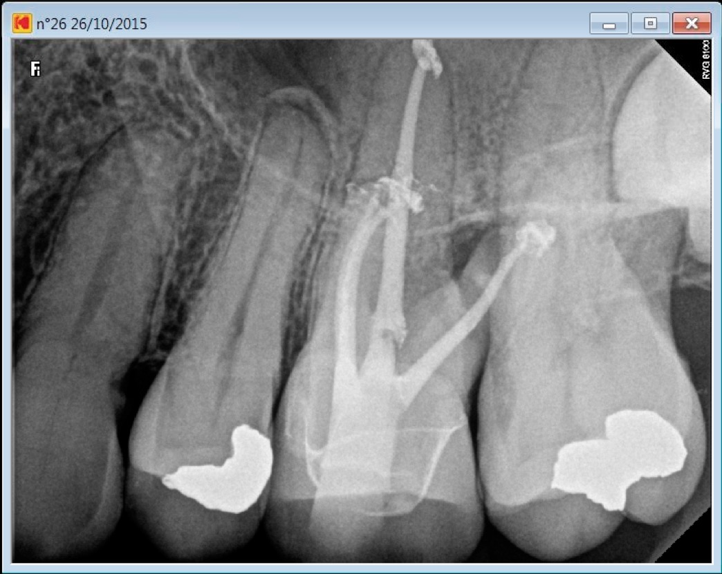 26 calcified MB2 post root canal procedure