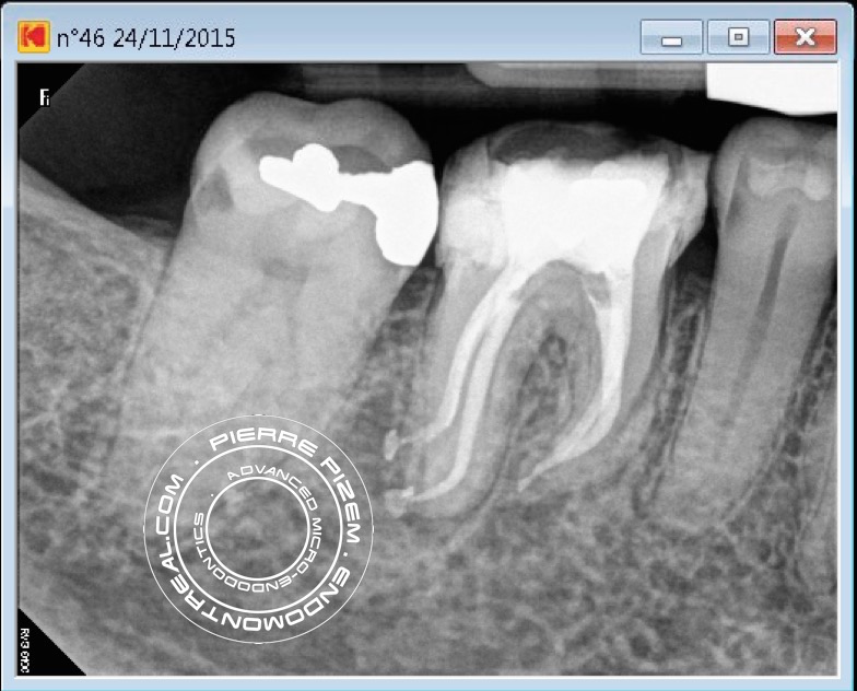 46 dilaceration post root canal therapyB