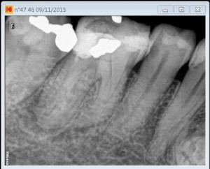 46 dilaceration pre root canal therapy