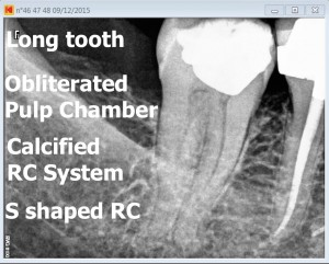 47 calcified tooth root canal procedure pre therapy 2016-01-13