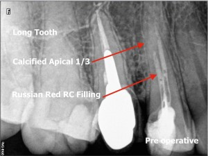 Russian red removal and calcified root canal procedure pre operative