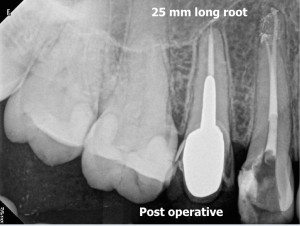 Russian red removal and calcified root canal procedure post operative