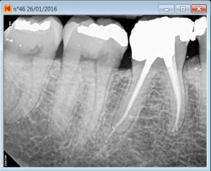 46 calcified Post treatment 2016-01-28
