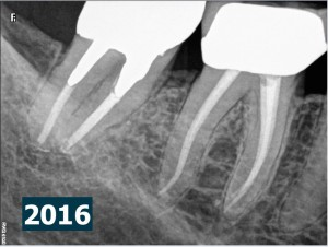 47 endodontic revision j shape post therapy