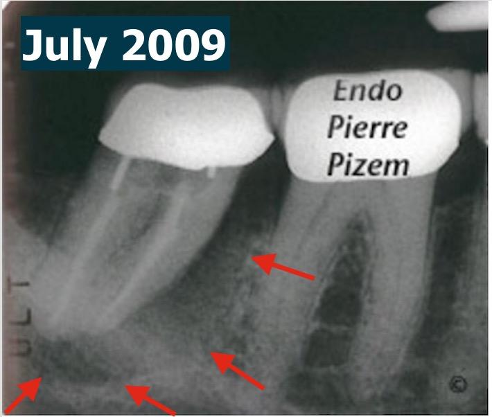 47 endodontic revision j shape pre therapy