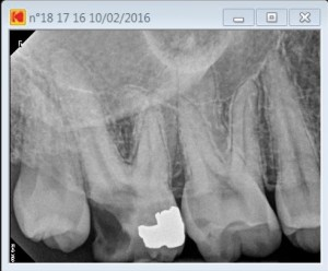 17 second palatal canal pre operative
