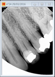 Tooth 24 long calcified 3 rooted tooth pre operative 2016-03-29