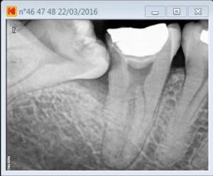 Root cana procedure on a 47 C shape pre operative
