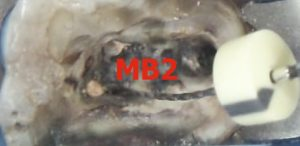 26d-20012014-post-removal-and-mb2-tx