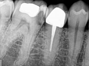 47 Root Canal Treatment on a Calcified molar A