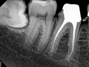 47 Root Canal Treatment on a Calcified molar D
