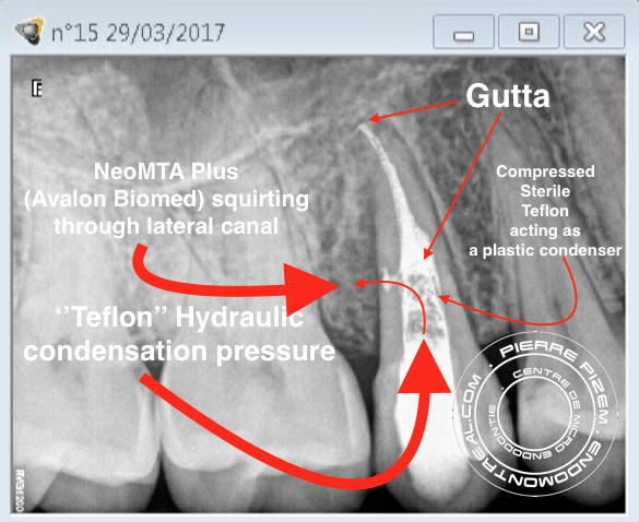 Root canal revision procedure on tooth 15 lateral canal management D