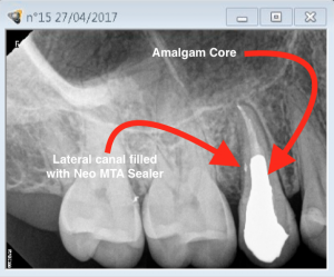 Root canal revision procedure on tooth 15 lateral canal management E