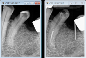 A challenging Root canal treatment procedure